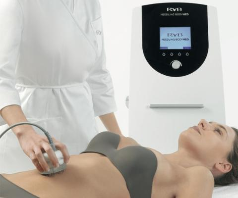Needling Bodymed - Vacum Terapia + Radiofrequenza Bipolare