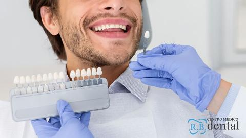 Sbiancamento  dentale  Blancone