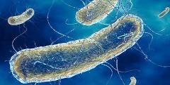 Analisi della Legionella