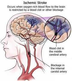 Ictus Cerebrale - riabilitazione