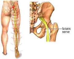 Sciatalgia - dolore sciatalgico