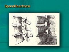 Spondiloartrosi