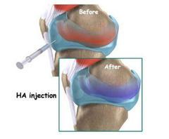 Infiltrazione di ginocchio con acido ialuronico
