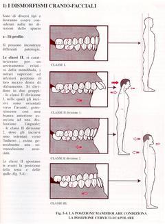Le ripercussioni delle malocclusioni sulla postura