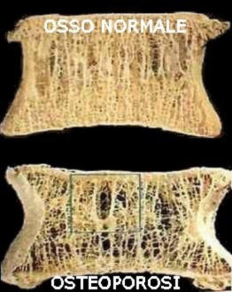 Osteoporosi - riabilitazione