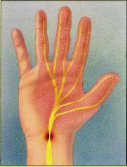 Sindrome del tunnel carpale - riabilitazione