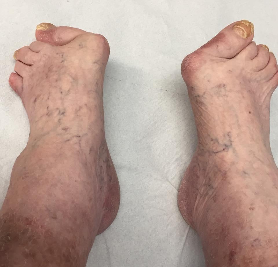 Radiografia del piede (RX piede)