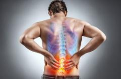 Lombalgia - Mal di schiena
