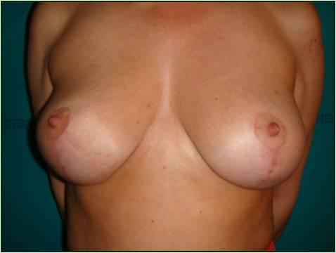 Mastopessi  mammaria
