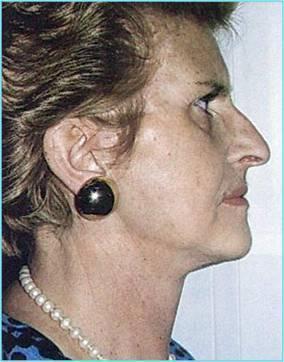 Lifting Cervico-facciale